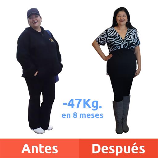 Edith Ortega - Testimonio de Cirugía Bariátrica - Antes y después